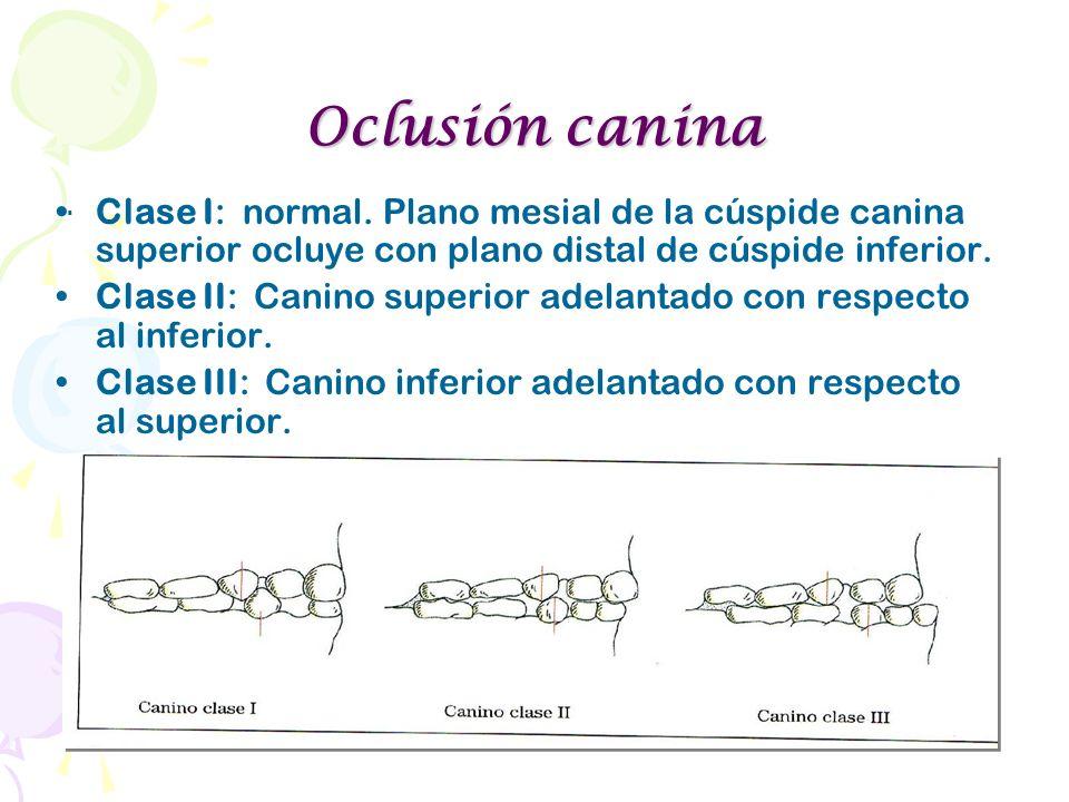 Oclusión canina Clase I: normal. Plano mesial de la cúspide canina superior ocluye con plano distal de cúspide inferior.