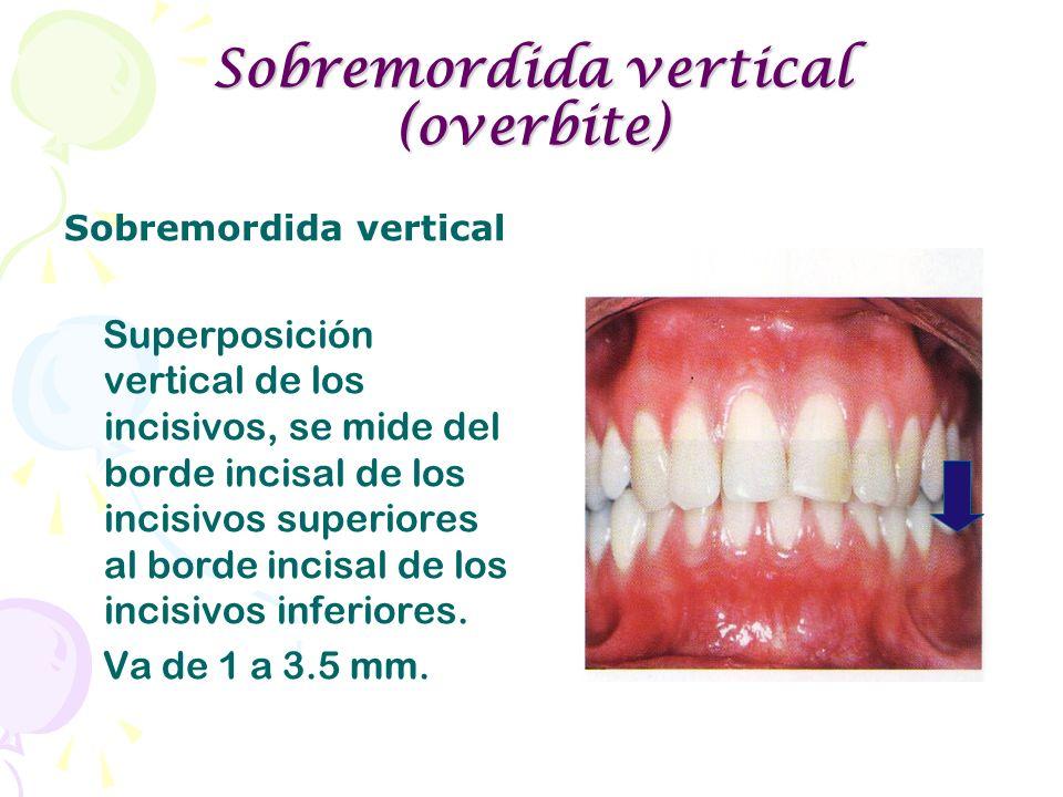 Sobremordida vertical (overbite)