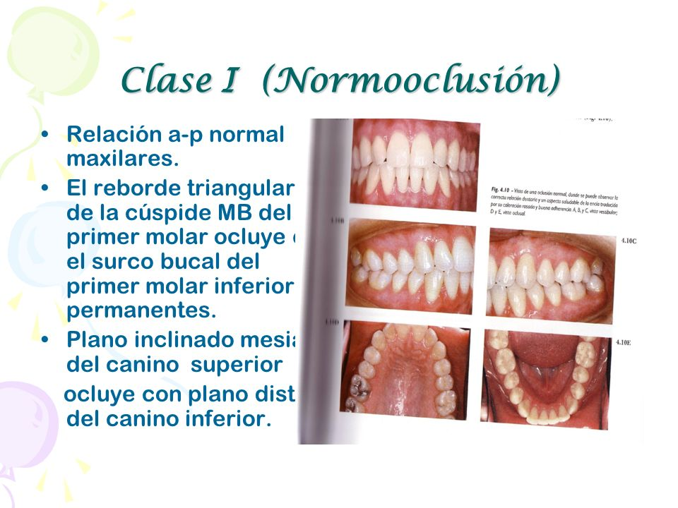 Clase I (Normooclusión)