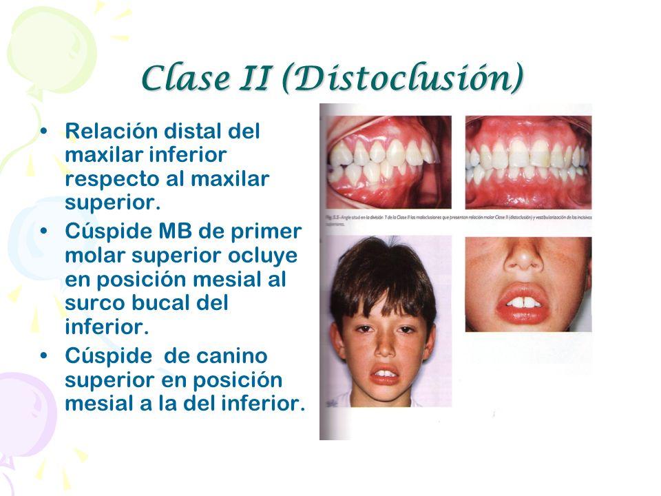 Clase II (Distoclusión)