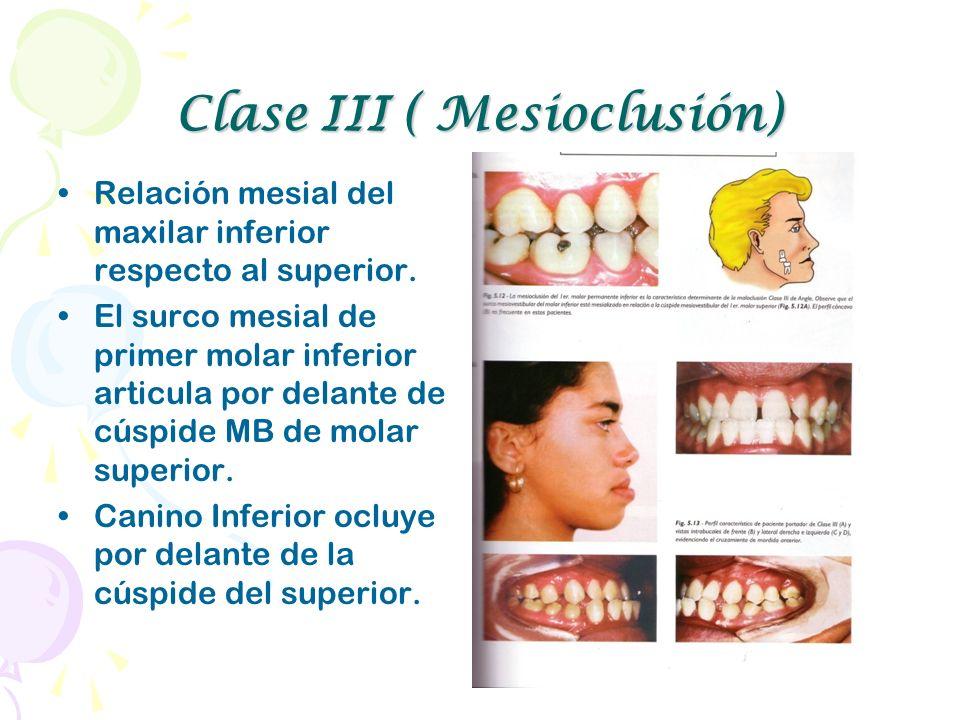 Clase III ( Mesioclusión)