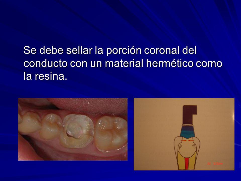 Se debe sellar la porción coronal del conducto con un material hermético como la resina.