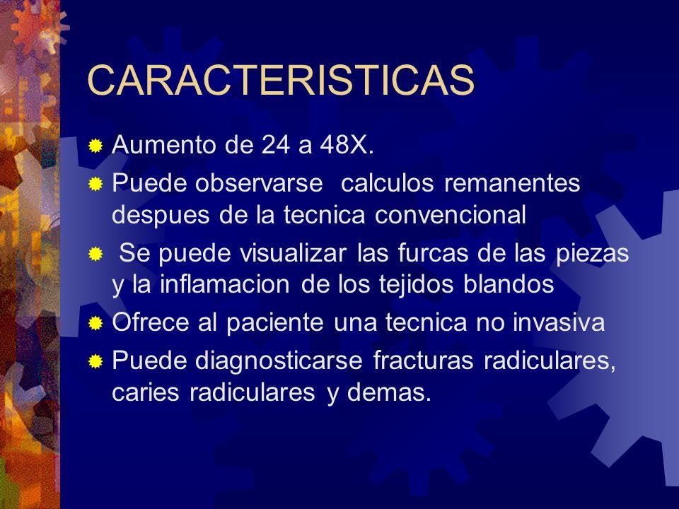 CARACTERISTICAS Aumento de 24 a 48X.