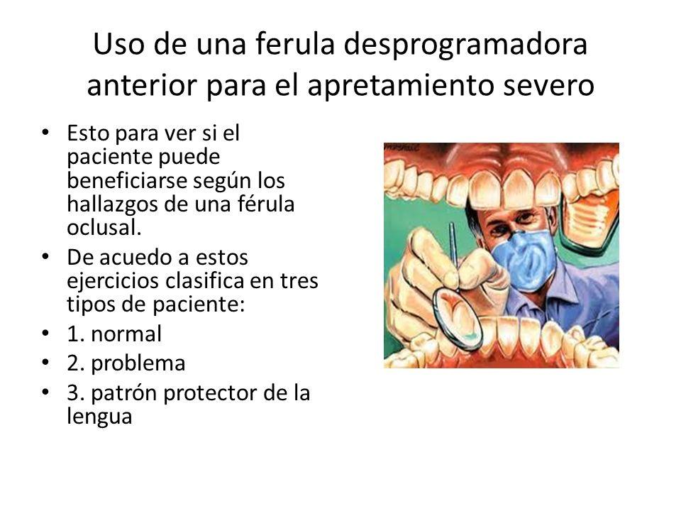 Uso de una ferula desprogramadora anterior para el apretamiento severo