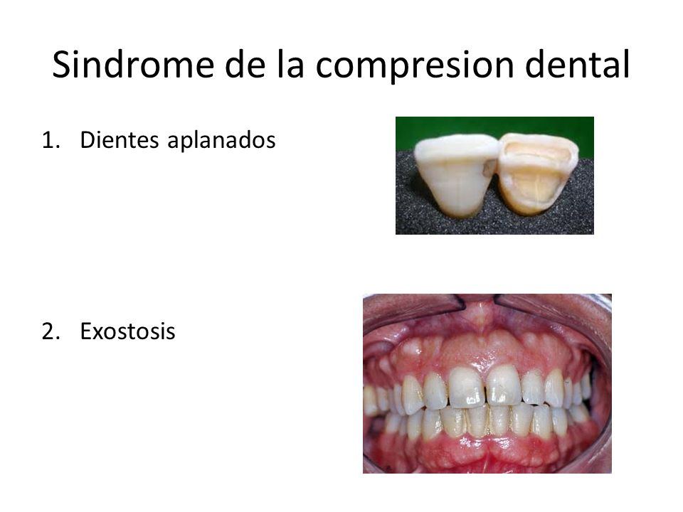 Sindrome de la compresion dental