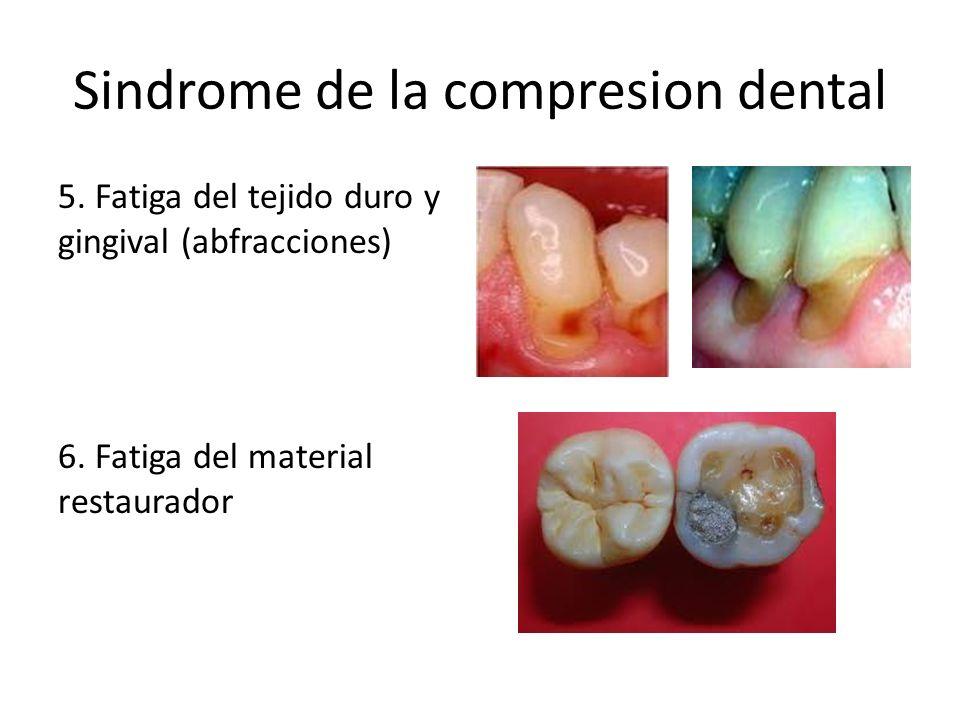 Sindrome de la compresion dental