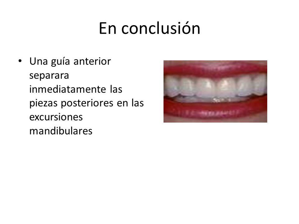 En conclusión Una guía anterior separara inmediatamente las piezas posteriores en las excursiones mandibulares.