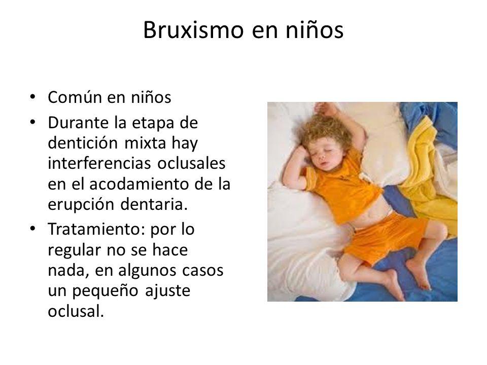 Bruxismo en niños Común en niños