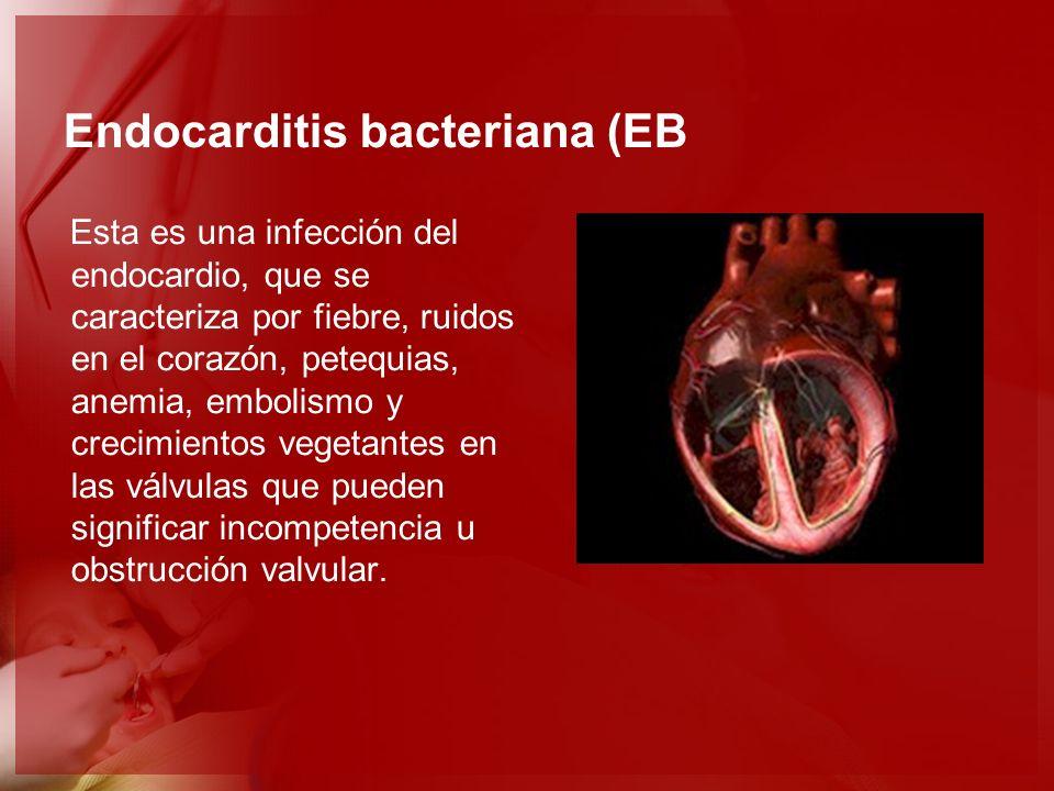 Endocarditis bacteriana (EB