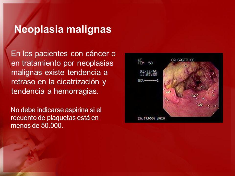 Neoplasia malignas