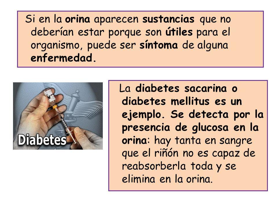 Si en la orina aparecen sustancias que no deberían estar porque son útiles para el organismo, puede ser síntoma de alguna enfermedad.