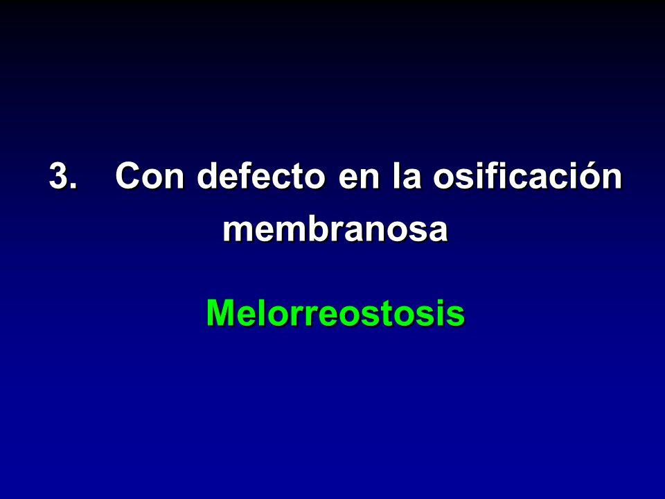 3. Con defecto en la osificación membranosa