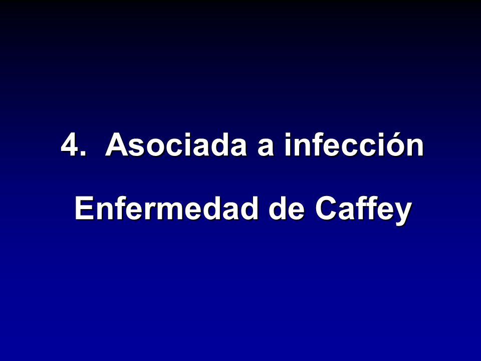 4. Asociada a infección Enfermedad de Caffey