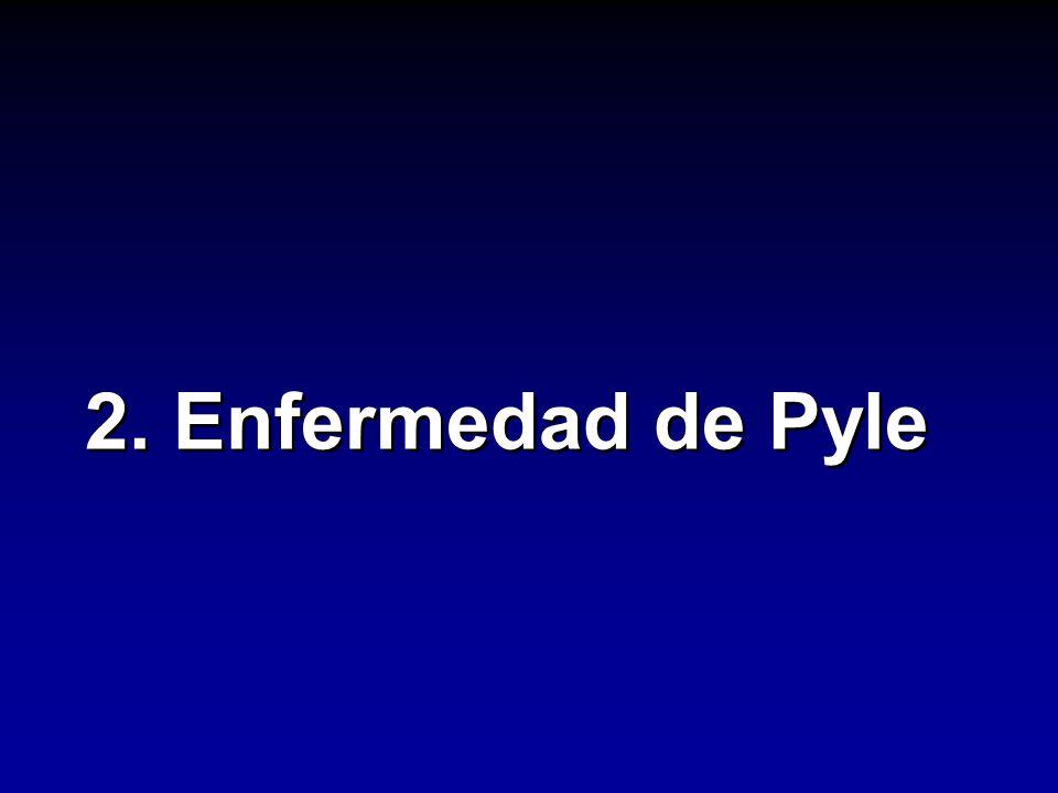 2. Enfermedad de Pyle