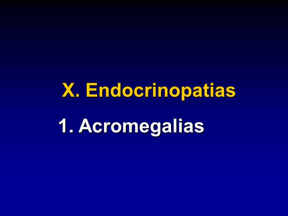 X. Endocrinopatias 1. Acromegalias