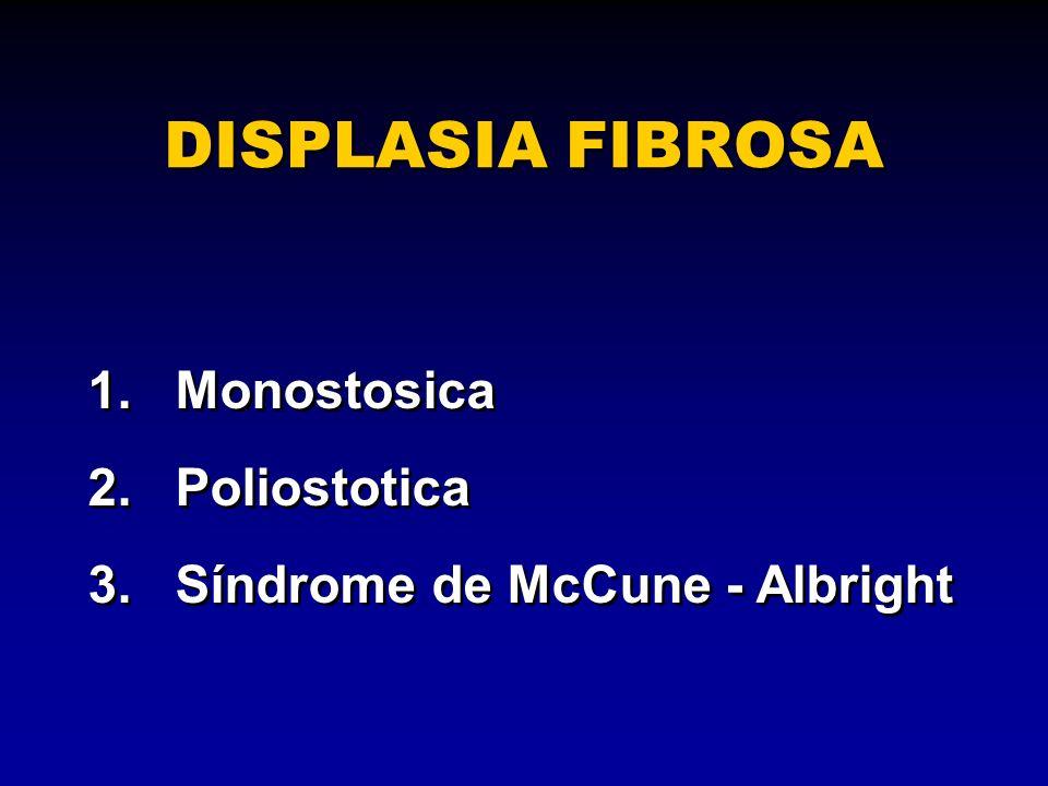 DISPLASIA FIBROSA 1. Monostosica 2. Poliostotica
