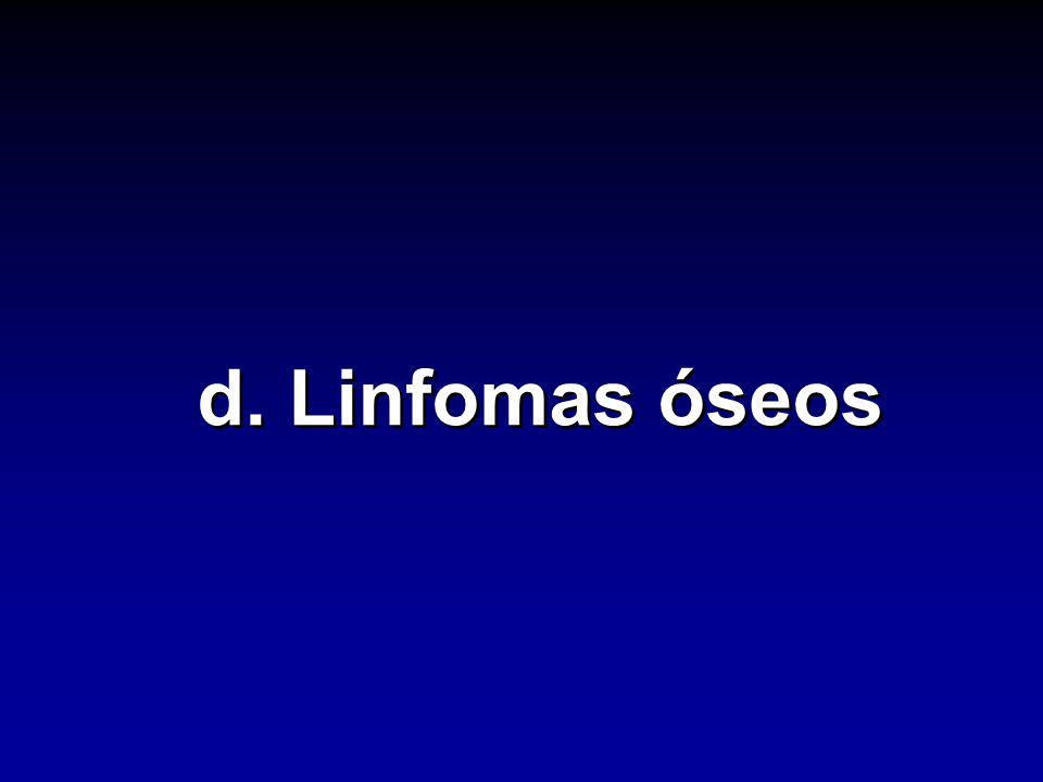 d. Linfomas óseos