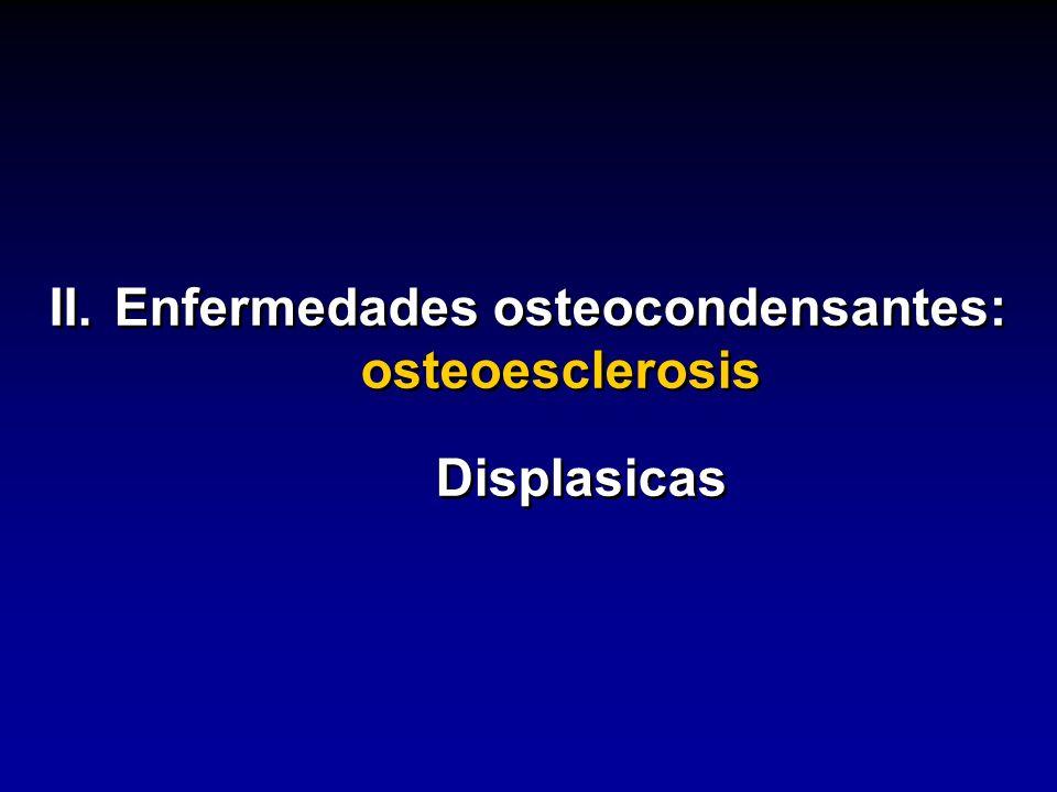 II. Enfermedades osteocondensantes: osteoesclerosis