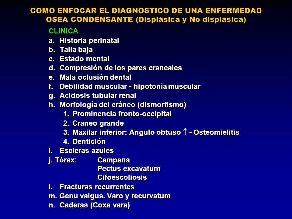 COMO ENFOCAR EL DIAGNOSTICO DE UNA ENFERMEDAD OSEA CONDENSANTE (Displásica y No displásica)