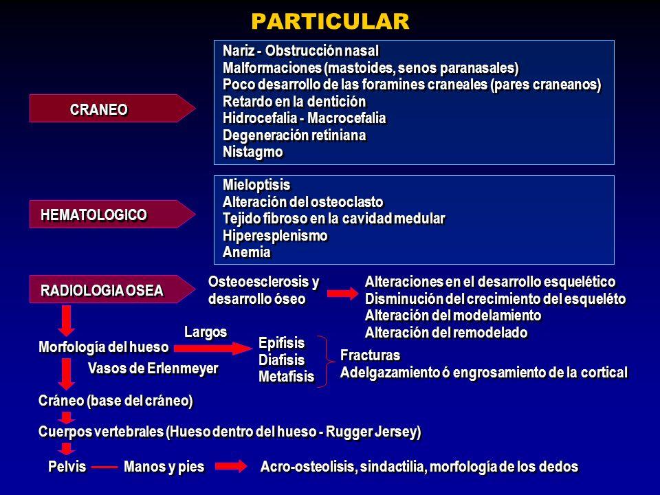 PARTICULAR CRANEO Nariz - Obstrucción nasal