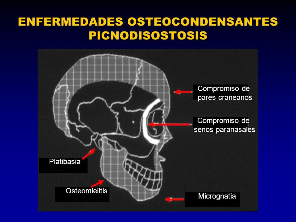 ENFERMEDADES OSTEOCONDENSANTES PICNODISOSTOSIS