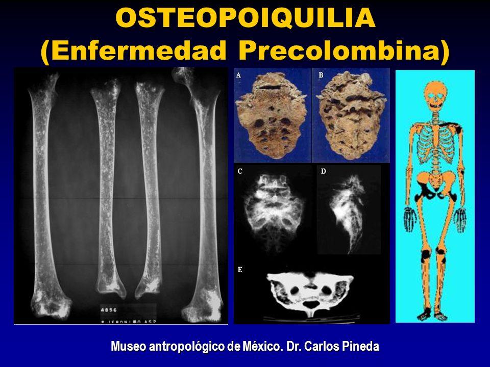 OSTEOPOIQUILIA (Enfermedad Precolombina)