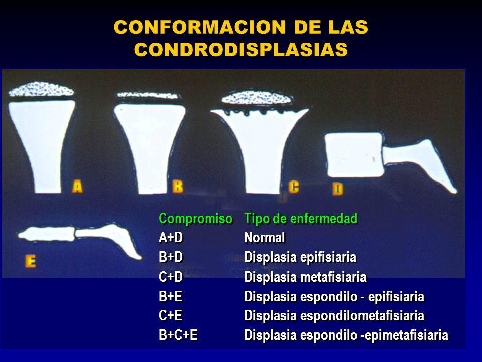 CONFORMACION DE LAS CONDRODISPLASIAS