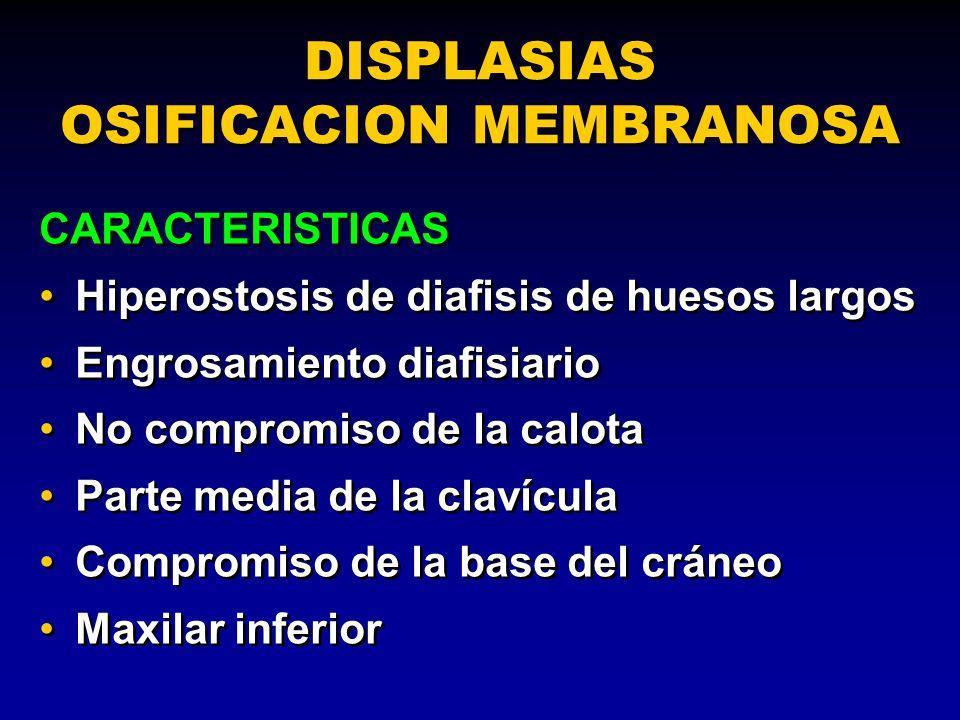 DISPLASIAS OSIFICACION MEMBRANOSA