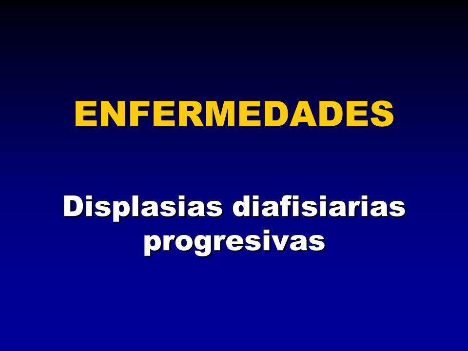 Displasias diafisiarias progresivas