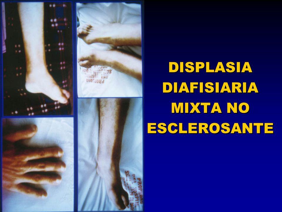 DISPLASIA DIAFISIARIA MIXTA NO ESCLEROSANTE