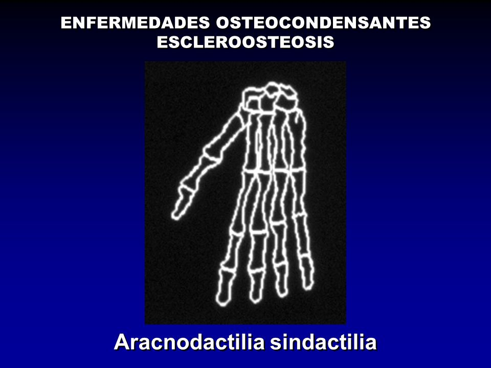 ENFERMEDADES OSTEOCONDENSANTES ESCLEROOSTEOSIS