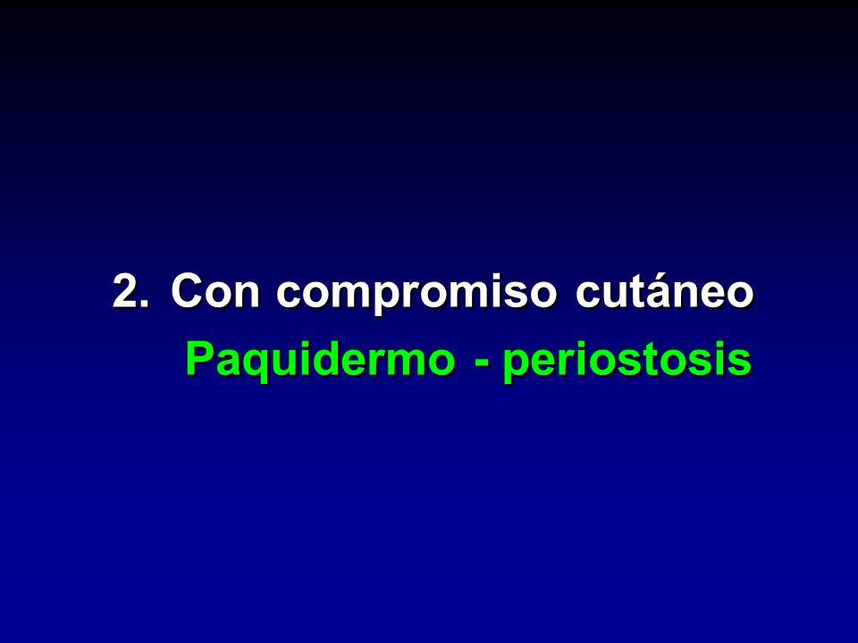 2. Con compromiso cutáneo Paquidermo - periostosis