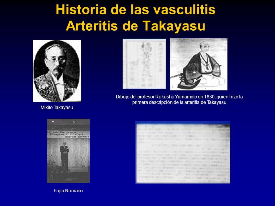 Historia de las vasculitis Arteritis de Takayasu