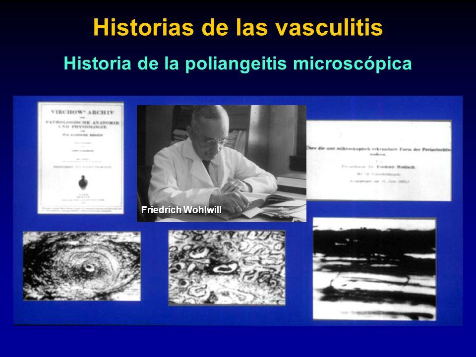 Historias de las vasculitis