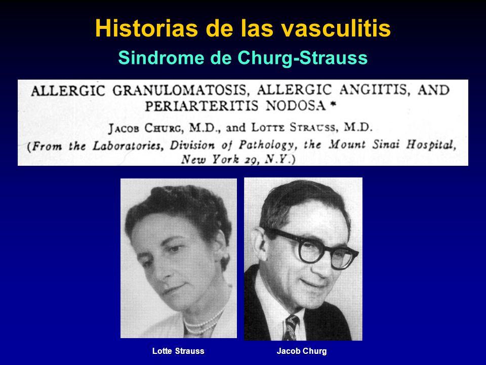 Historias de las vasculitis Sindrome de Churg-Strauss