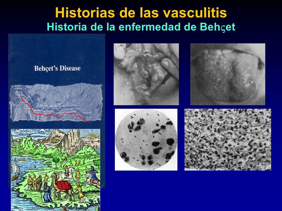 Historias de las vasculitis Historia de la enfermedad de Behet