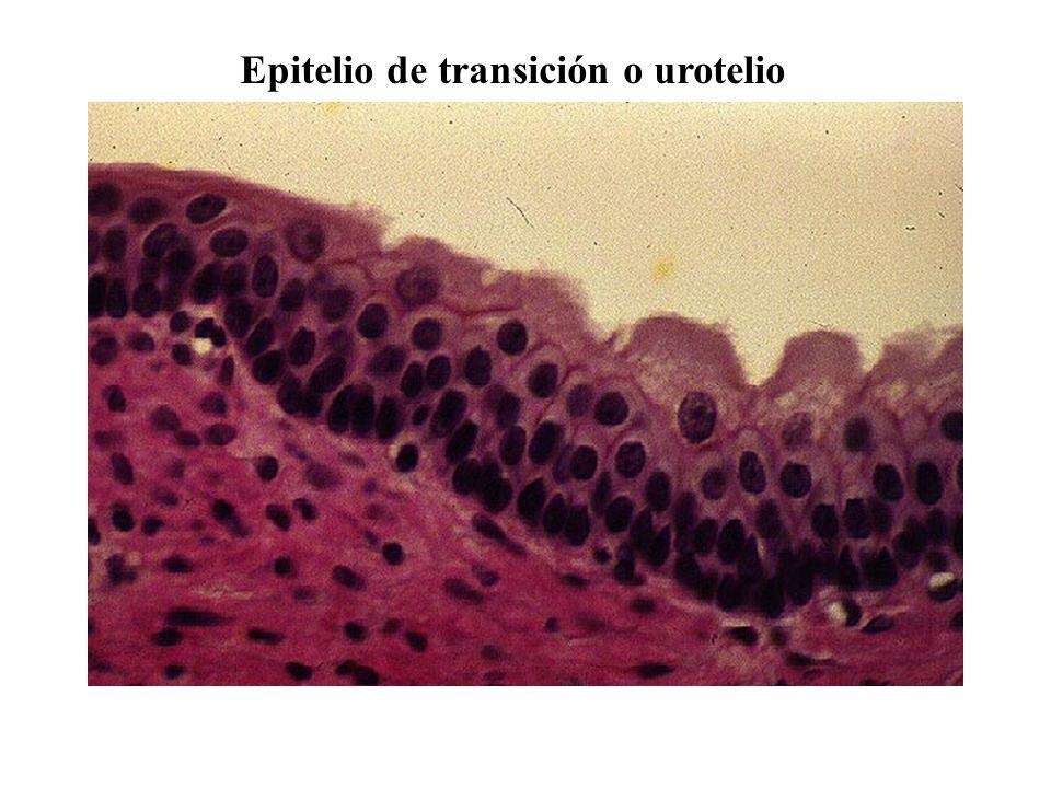 Epitelio de transición o urotelio