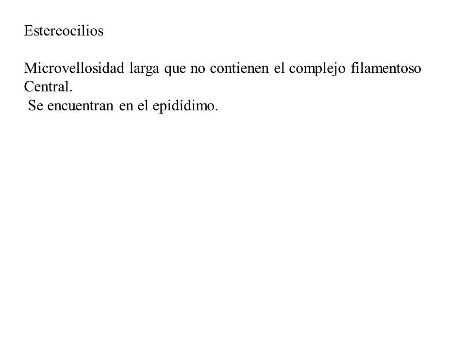 Estereocilios Microvellosidad larga que no contienen el complejo filamentoso.