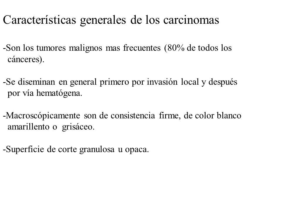 Características generales de los carcinomas