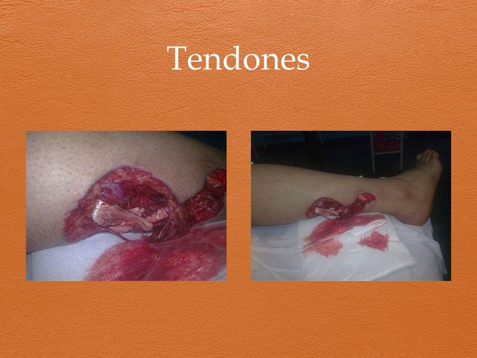 Tendones
