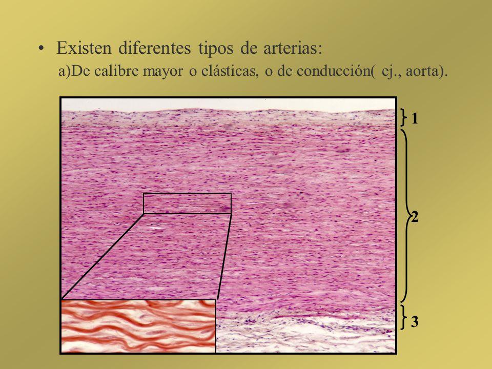 Existen diferentes tipos de arterias: