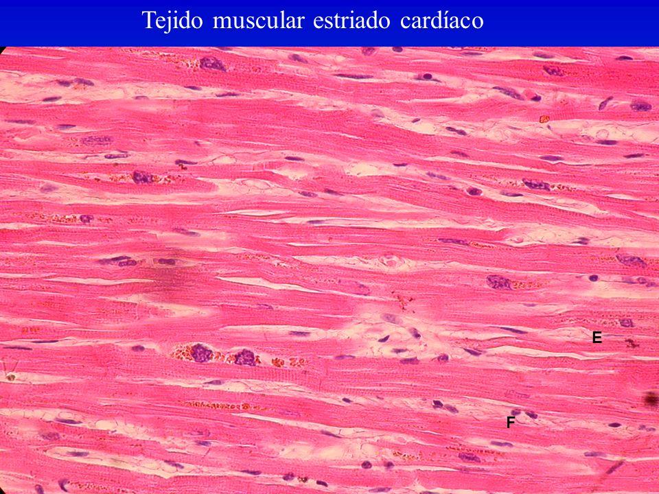 Tejido muscular estriado cardíaco