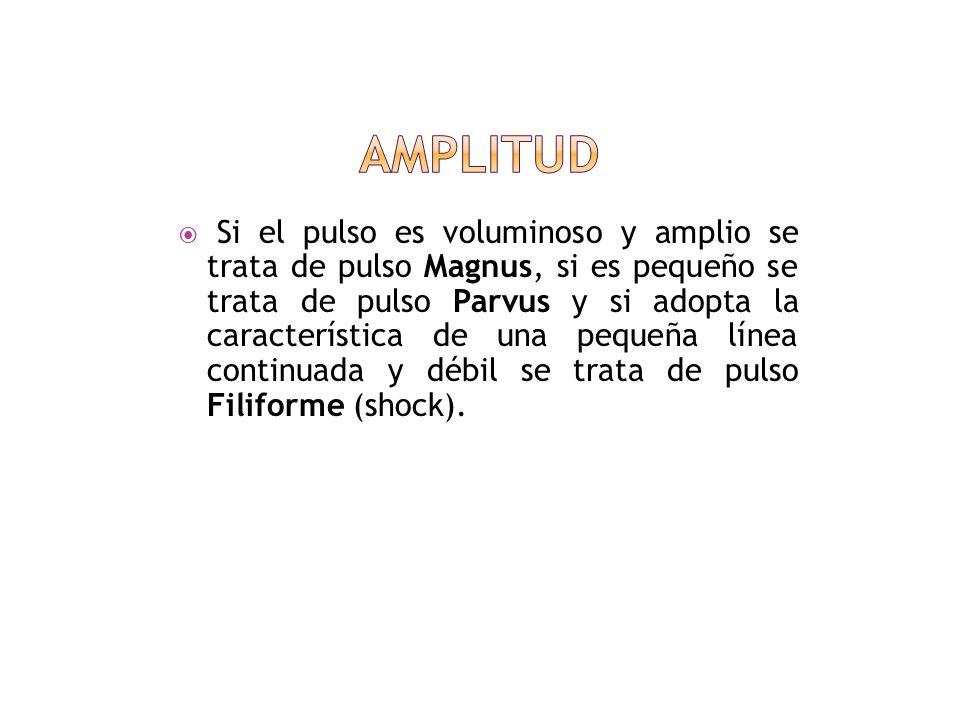 Amplitud