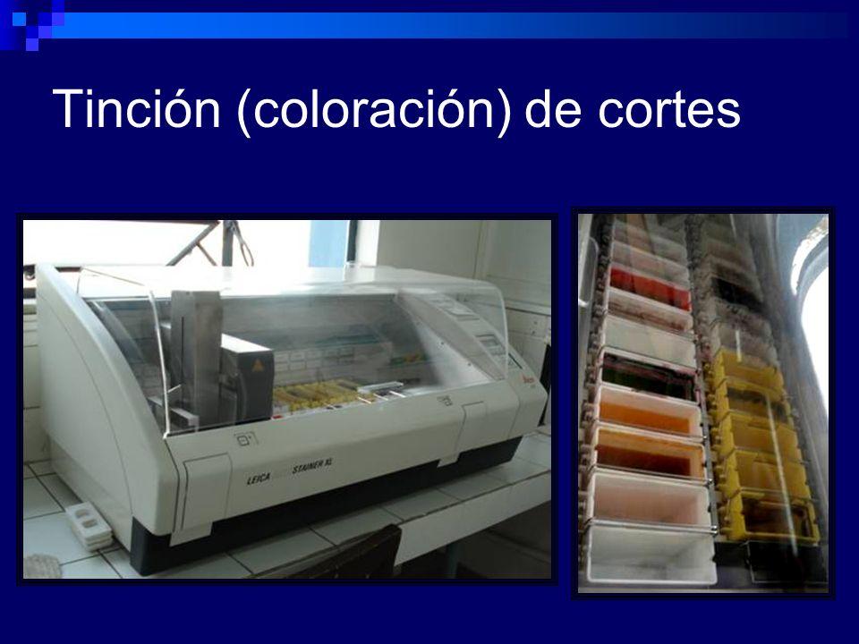 Tinción (coloración) de cortes