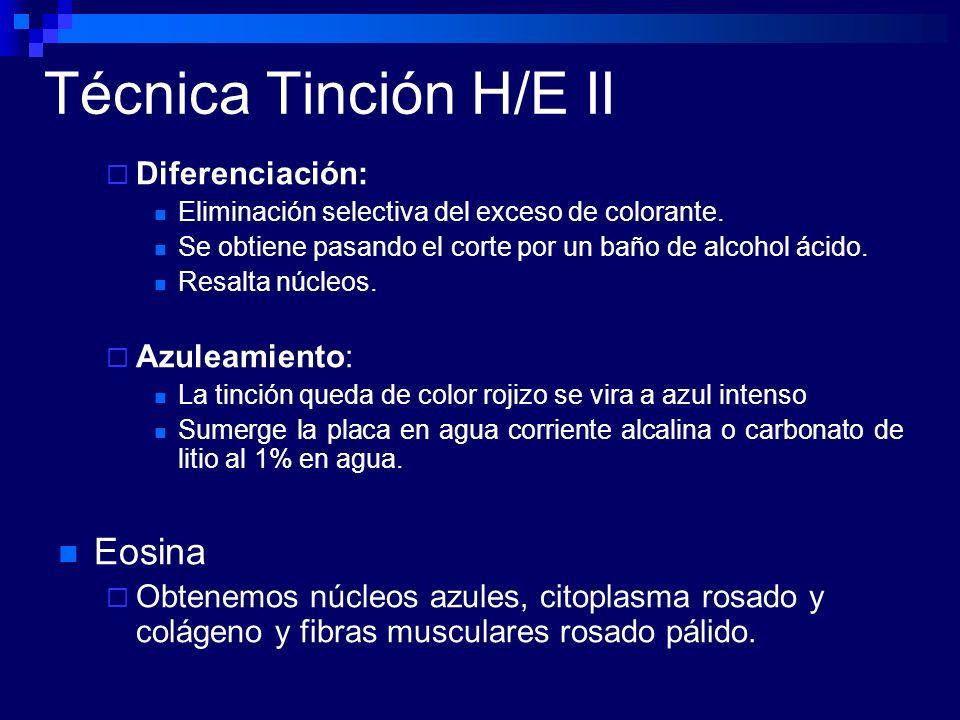 Técnica Tinción H/E II Eosina Diferenciación: Azuleamiento: