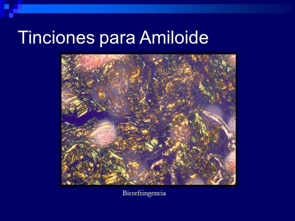 Tinciones para Amiloide