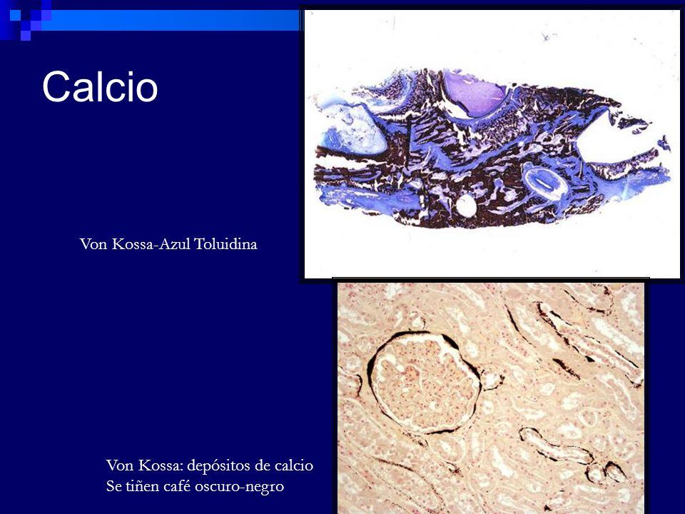 Calcio Von Kossa-Azul Toluidina Von Kossa: depósitos de calcio