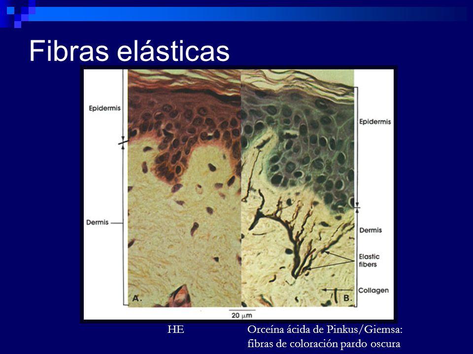Fibras elásticas HE Orceína ácida de Pinkus/Giemsa: