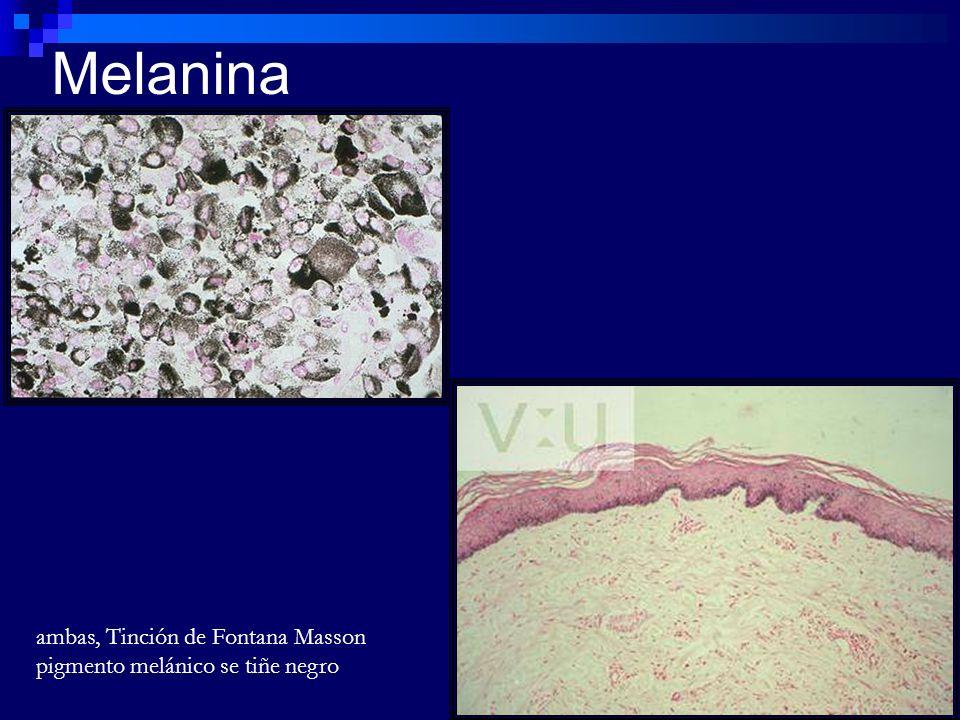 Melanina ambas, Tinción de Fontana Masson