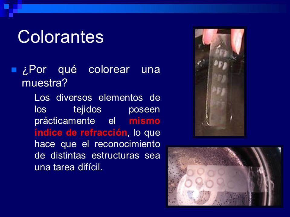 Colorantes ¿Por qué colorear una muestra